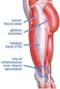 Iliotabial Band Syndrome