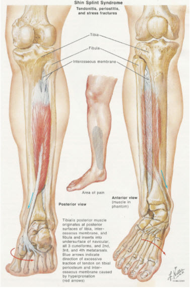 Shin Splints (Medial Tibial Stress Syndrome) | San Diego ...