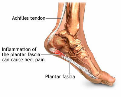 how to stop heel pain from running