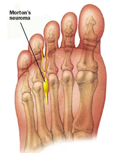 Painful Morton's neuroma in Houston