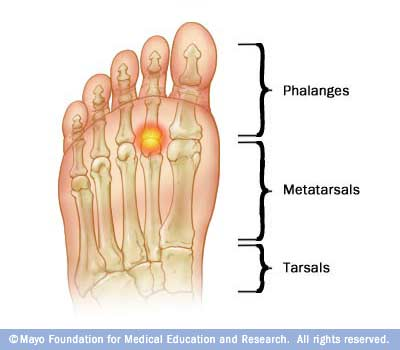 Plantar plate spraintear specialist san diego san diego injury clinic plantar plate sprain symptoms publicscrutiny Image collections