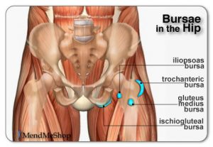 Ischial Bursitis (Courtesy of MendMeShop)