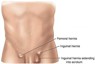 Swollen Lymph Nodes Groin Women What's the difference ...