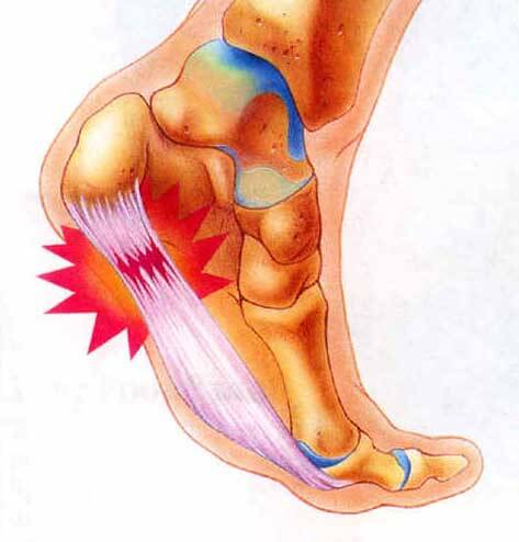 Fix Plantar Fasciits