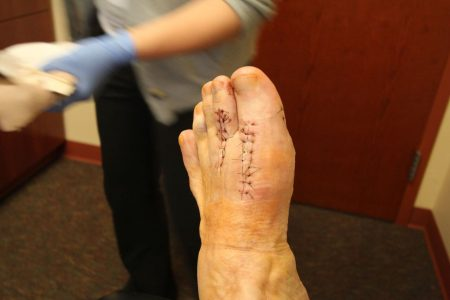 foot surgery for plantar plate tears