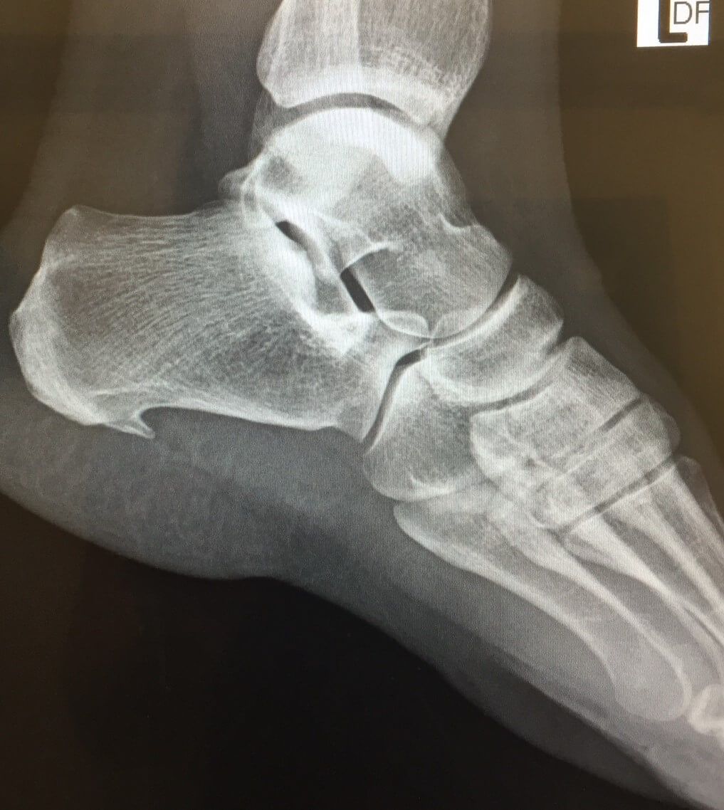 Do you see the spur growing on the heel or Calcaneus