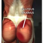 unfortunately strengthening glutes will not correct a leg length inequality