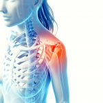 Bursitis will hurt in the front and side of shoulder and may hurt to lie on