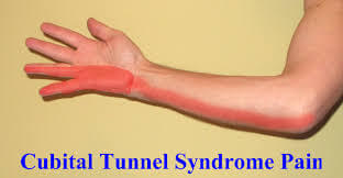 Nerve irritation at the elbow can cause symptoms along the entire nerve