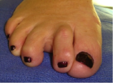 Deviated toe is a sign of a plantar plate injury
