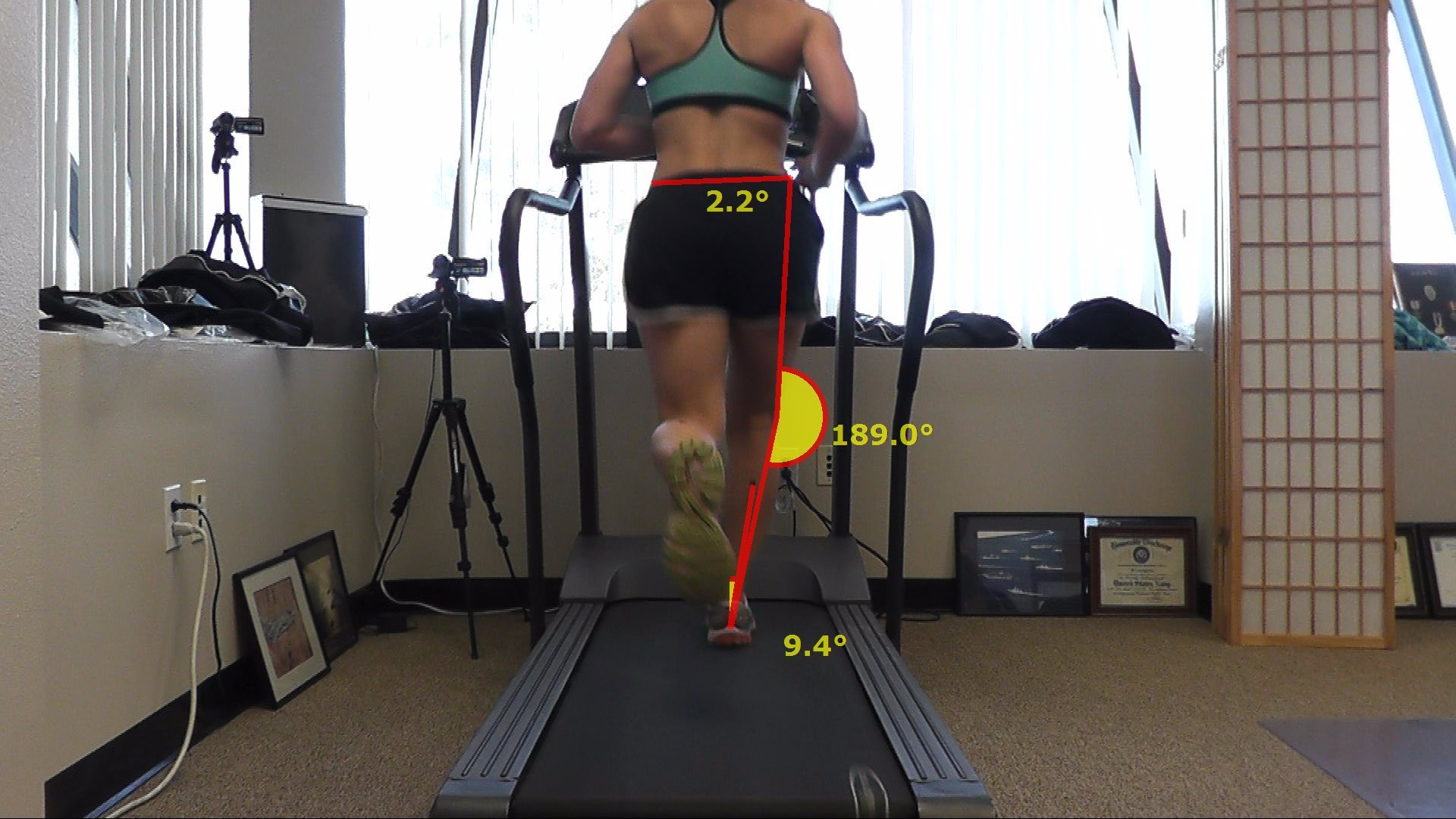 Computerized gait analysis can help prevent injury and improve form