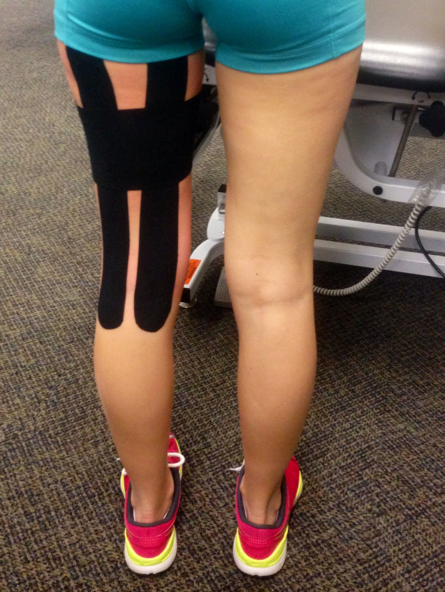 Taping can be effective but a brace provides more compression and is easier to use